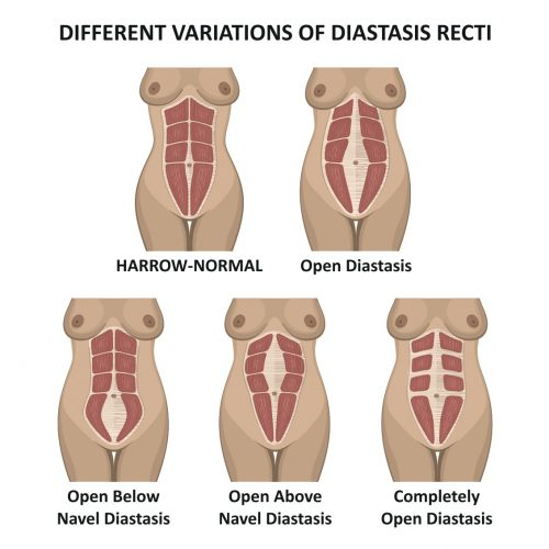 03cca21f6bc ... tissue holding them together to take on the accompanying extra intra-  adominal pressure during pregnancy and this is called the Diastasis Recti.